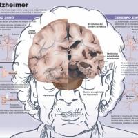 Científicos británicos desarrollan una vacuna contra el Alzhéimer