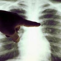 Extremadura lidera la bajada del riesgo de muerte por cáncer de pulmón en hombres