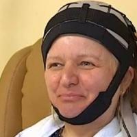El gorro que evita que pacientes con cáncer pierdan pelo con la quimioterapia ya se puede usar en España